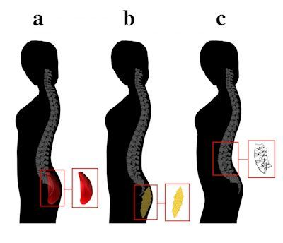 Buttock protrusion associated with (a) gluteal development indicating physical fitness, (b) adipose tissue deposition, and (c) vertebral wedging. Notes: All women exhibit identical buttock protrusion. Women (a) and (c) also exhibit an identical angle between the thoracic spine and buttocks (i.e., lumbar curvature). Picture Credit: The University of Texas at Austin.